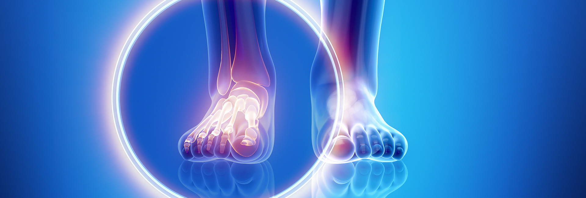 Foot-Ankle-Lower-Leg-Plantar-Fascia-Pain---Physical-Therapy